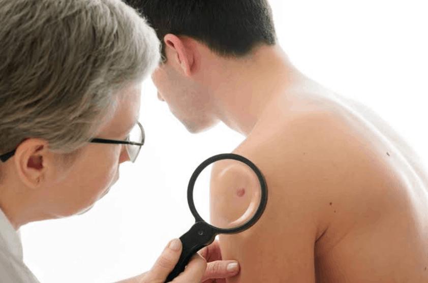 Dezembro Laranja: saiba tudo sobre o câncer de pele | dezembro-laranja