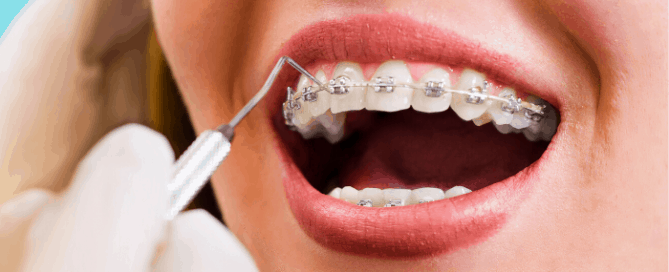 como cuidar dos dentes com aparelho | higienização bucal | aparelho fixo