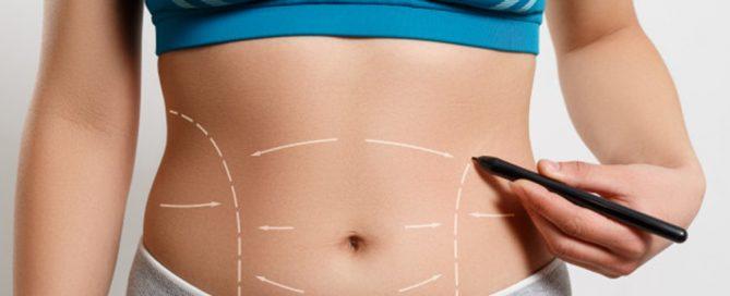 como é feita abdominoplastia