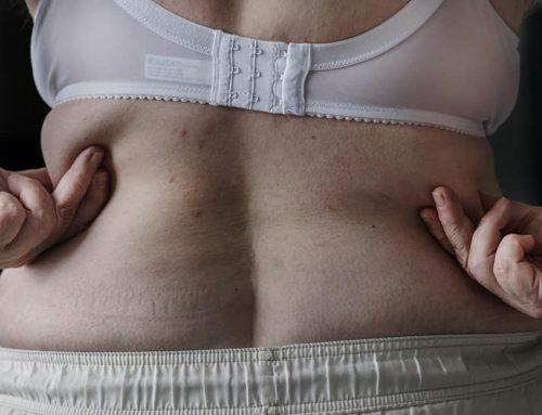 Lipoaspiração: tudo o que você precisa saber antes de fazer