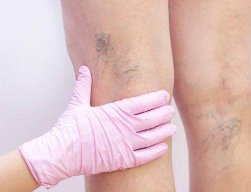 Varizes: O que são? Quais as causas? Sintomas e tratamentos?