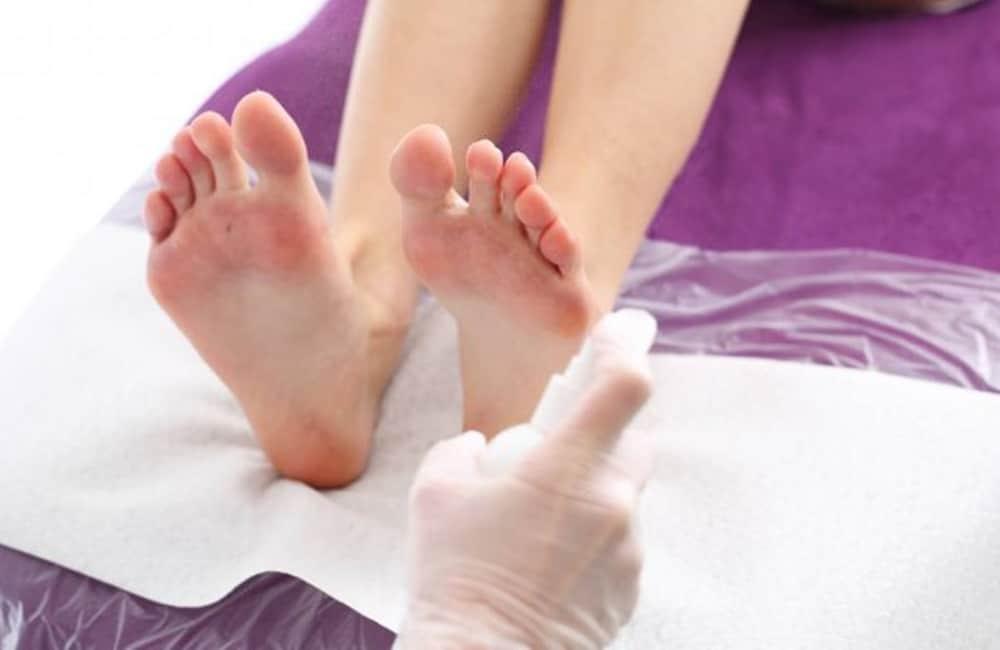 tipos de micose na pele | frieira | pé de atleta